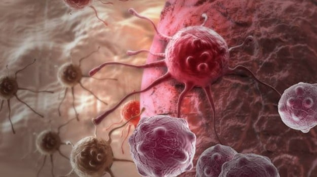Personalised Breast Cancer Treatment has Saved Millions: Experts