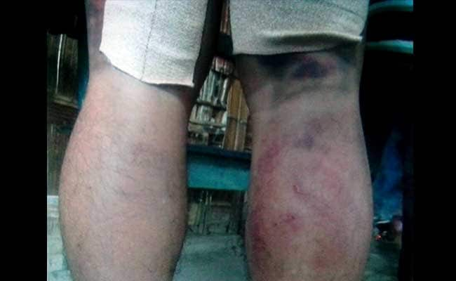 Manipur Teacher Thrashed For Allegedly Caning Student, Hospitalised