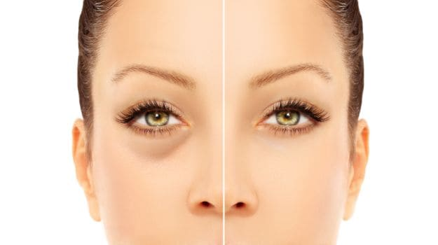 Eye Dark Circles Natural Treatment In Hindi