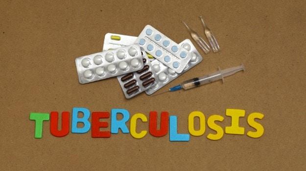tuberculosis 625