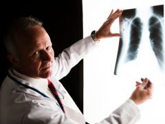 Middle-Aged At Greater Risk Of Late Stage Lung Cancer: Study