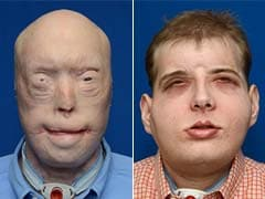 Injured Firefighter Undergoes the World's Most Extensive Face Transplant