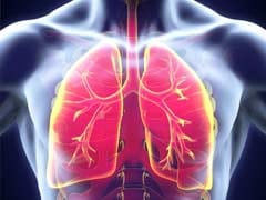 Middle-Aged At Higher Risk Of Advanced Lung Cancer: Study