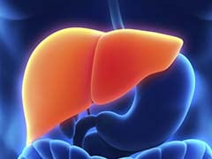 Fatty Liver May Increase Heart Disease Risk