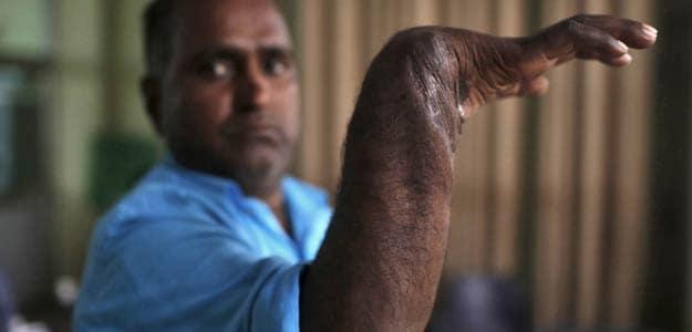 Visheshwar Prasad displays his re-attached right hand. Photo: Reuters
