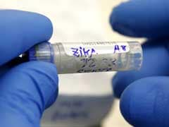 First Case Of Zika Infection After Sex Between Gay Men: US