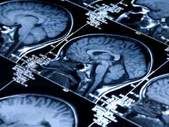 Laser Brain Cancer Treatment May Bring Extra Advantage