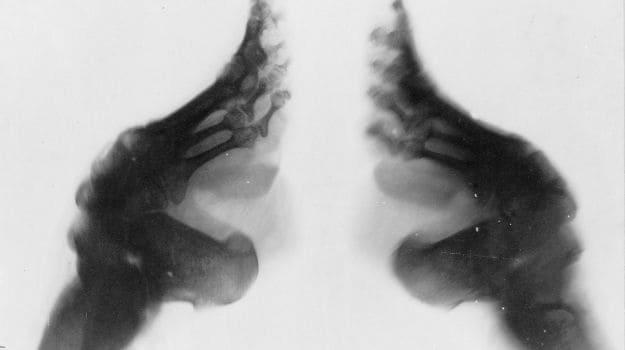 x ray chinese feet