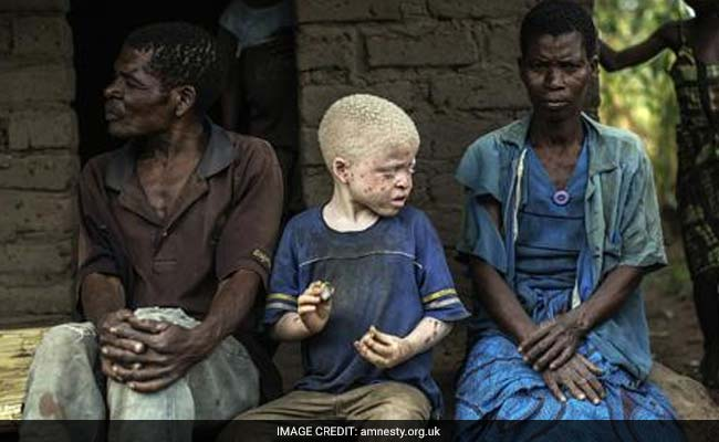 End Impunity For Attacks On Albinos, Euro MPs Urge