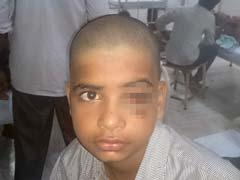 12-Year-Old Survives After Metal Hook Pierces Skull, Eye Socket