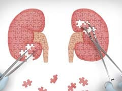 Kidney Failure Patients On Dialysis At Early Death Risk