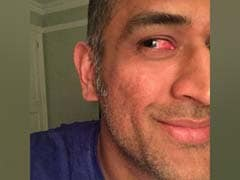 When an Injured MS Dhoni Kept Wicket Despite Blurry Vision and Pain