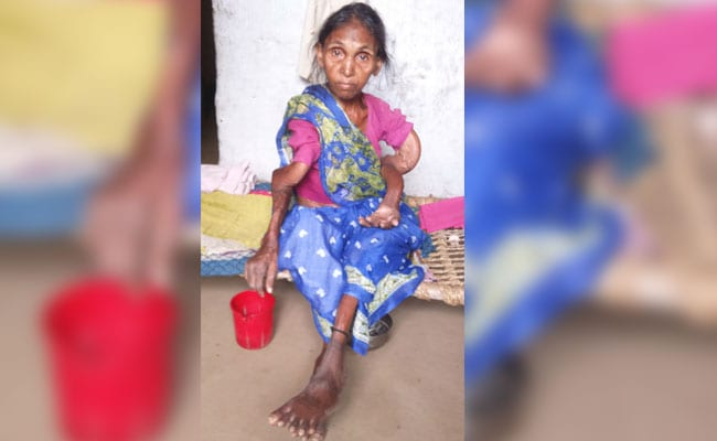 36 Dead In Jharkhand Village Of Skeletal Fluorosis