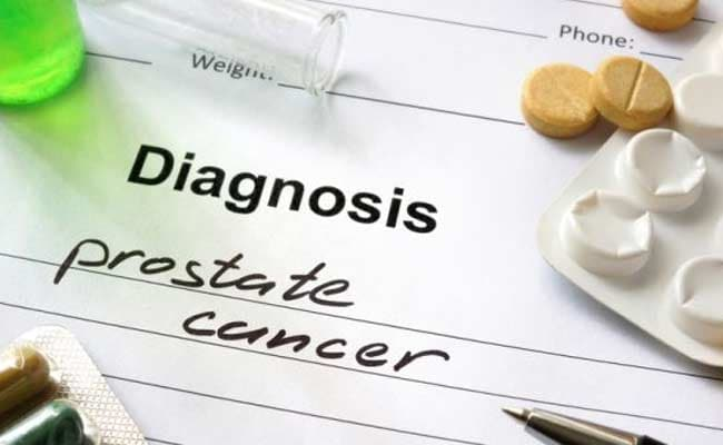 Incurable Prostate Cancer Cases Up By 70 Per Cent In US