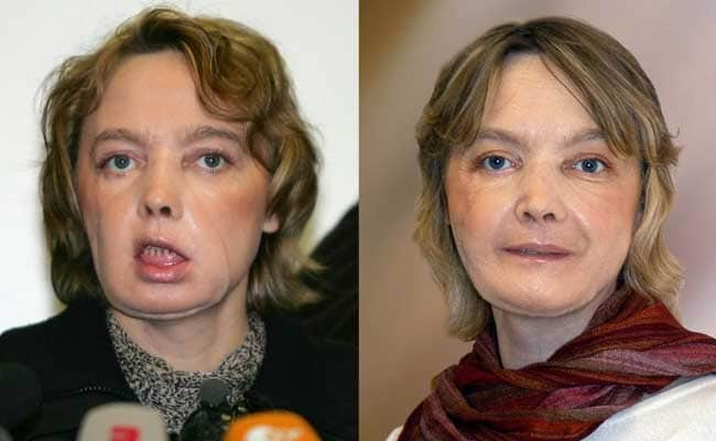 First face transplant patient dies at 49