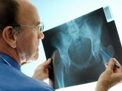 For Osteoporosis, Early Treatment Is Crucial