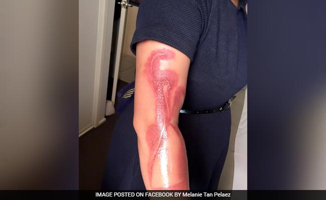 Australian woman gets severely burnt by sleeping on iPhone while being charged