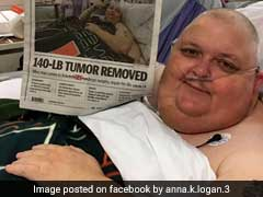 'You're Just Fat' He Was Told. It Was Actually 130-Pound Abdominal Tumour