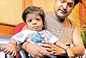 Baby with 34 fingers to be operated on