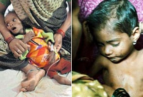 450 kids starve to death in 4 months
