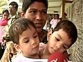 Madhya Pradesh's Siamese twins to be separated tomorrow