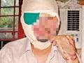 Six injured as man throws acid on hospital staff in Pakistan