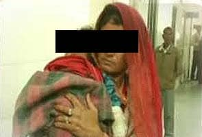 Bikaner baby who was bitten by her father on nose, lips dies in hospital