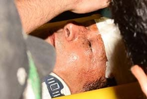 Imran Khan suffers head injury after fall from lift at Lahore rally