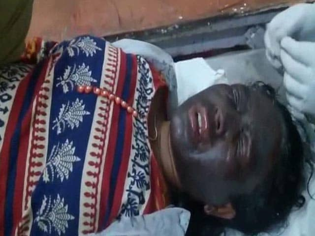 Video : Tribal Activist Soni Sori Attacked With 'Acid-Like Chemical' In Chhattisgarh