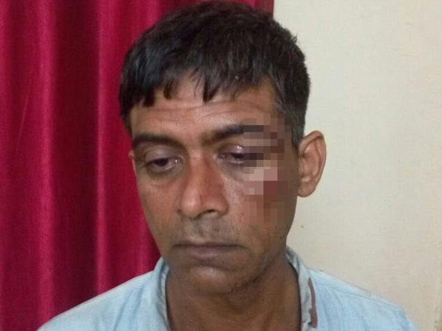Cabbie Thrashed Allegedly By Africans After Argument In Delhi