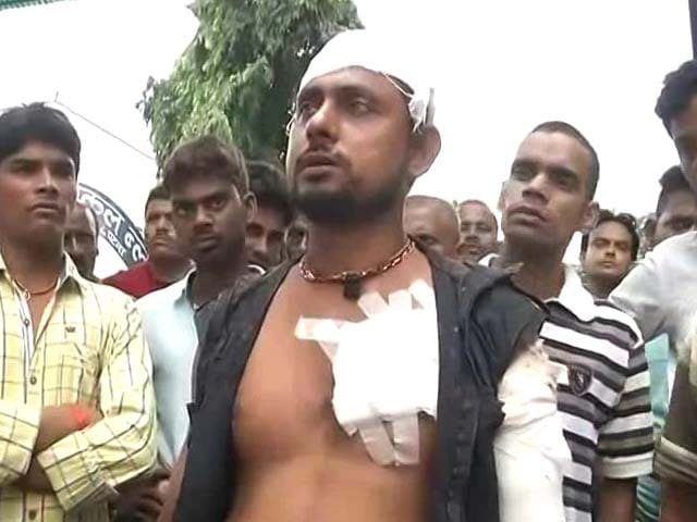 Video : RJD Legislator's Son Allegedly Stabs Man For Overtaking His Car, Arrested