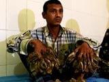 Video: Surgery For Bangladesh's 'Tree Man' To Remove Warts