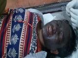 Video : Tribal Activist Soni Sori Attacked With 'Acid-Like Chemical' In Chhattisgarh