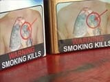 Tobacco Warnings: Smoking Kills, Yet India Drags Feet