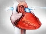 Understanding the Basics About Heart Stents