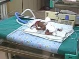 Video : Mumbai Couple Turns To Crowdfunding To Save Their Month-Old Baby