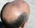 Hair loss signals prostate cancer risk