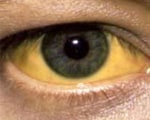 Common symptoms of jaundice
