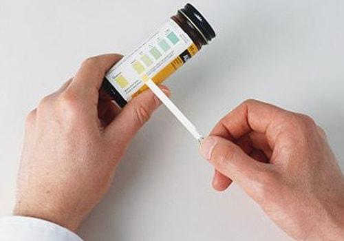 Urine-albumin
