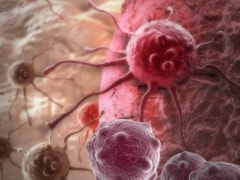 Soon, Personalised Medication for Patients With Prostate Cancer?