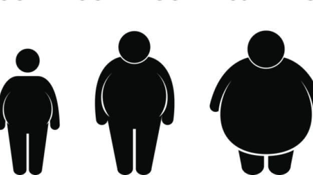 Resultado de imagem para obesity