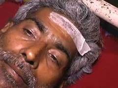 बिहार के अस्पताल में घायलों के माथे पर चिपकाया गया 'भूकंप' लिखा स्टीकर