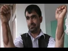 Afghan Military Captain Gets Indian Hands in Transplant