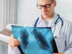 WHO Calls For Direct Engagement To End Tuberculosis