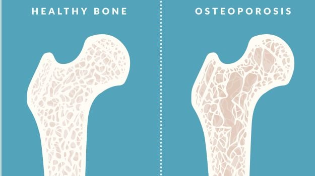 all about osteoporosis the role of calcium vitamin d and