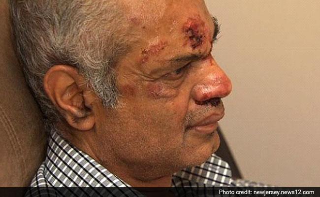 Indian-Origin Man's Teeth Broken in Hate Crime in New Jersey