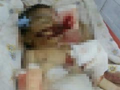 Andhra's Shame: Baby in Hospital Allegedly Bitten by Rats