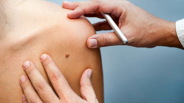 Why You May Want to Get that Mole Checked Out