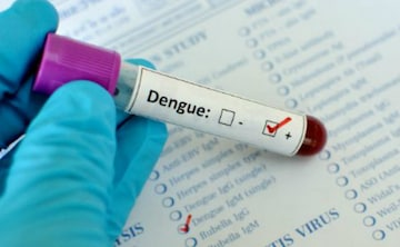 A Second Time Dengue Infection Can be Life-Threatening Says