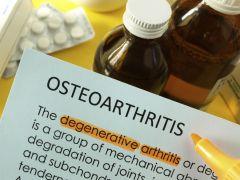 Women At Higher Risk of Osteoarthritis Than Men, Says Arthritis Foundation of India